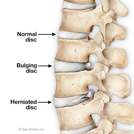 Bulging and herniated disc.