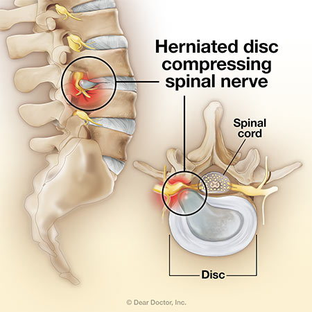 Herniated Disc.