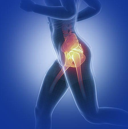 Hip pain.