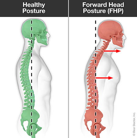 Forward head posture.