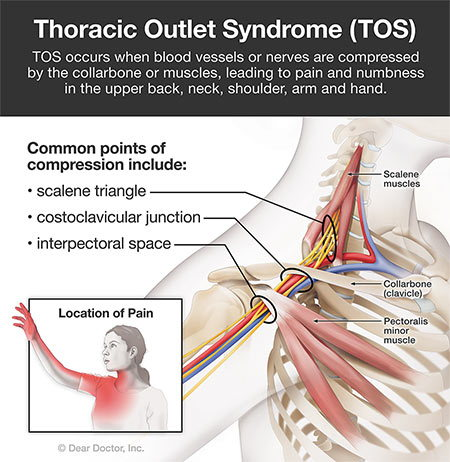 Thoracic outlet syndrome.