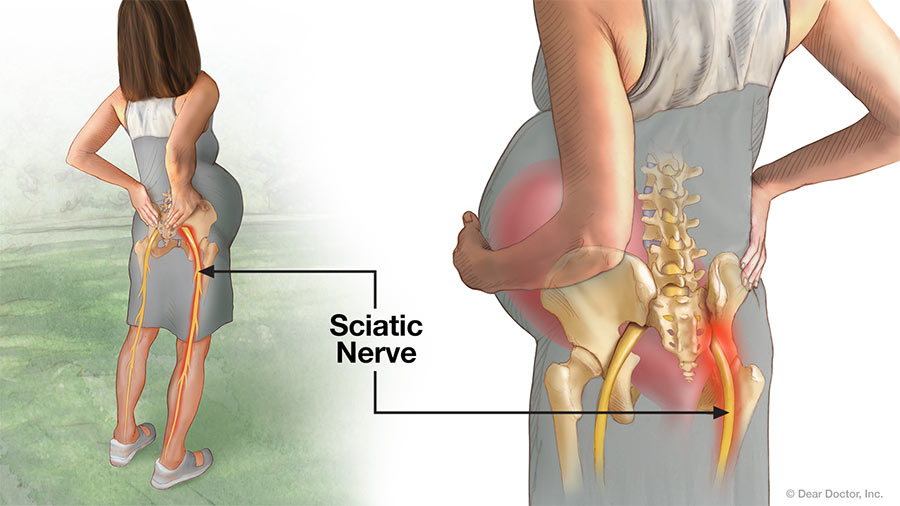 Pregnancy Pain - Sciatic Nerve.