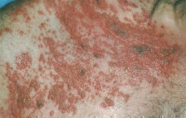 shingles-symptoms_widespread.jpg
