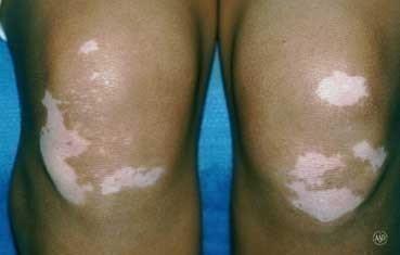 Vitiligo Dermatologist In Lincoln Ne Strnot Dermatology