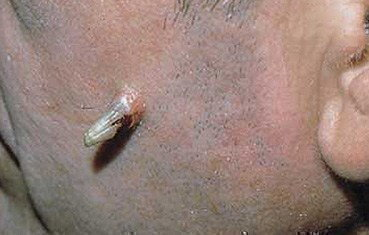 cutaneous-horn.jpg