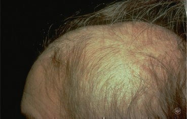 Alopecia-areata_symptoms_hair-loss.jpg