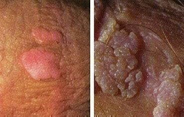Genital warts Tribeca, NY