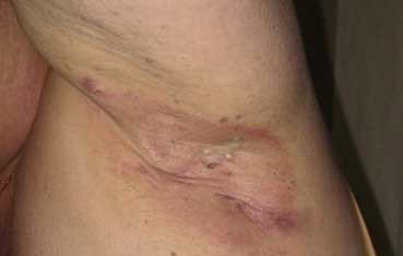 Hidradenitis Suppurativa Dermatology Tribeca Ny Downtown Dermatology