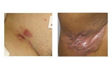 Hidradenitis-suppurativa_symptoms.jpg