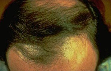 Hair loss - Dermatologist in Murfreesboro, TN | Charles E