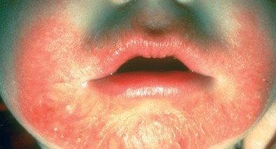 Eczema Treatment: Topical Corticosteroids for Children