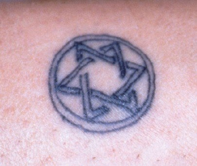 Tattoo before laser removal treatments
