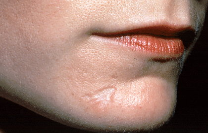 scars-chin-overview.jpg