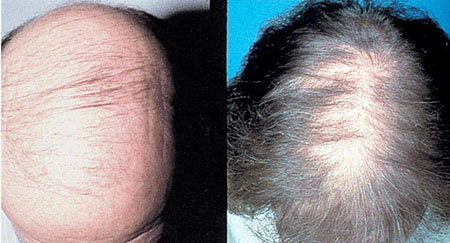 Androgenetic Alopecia: Male (L) and Female (R)