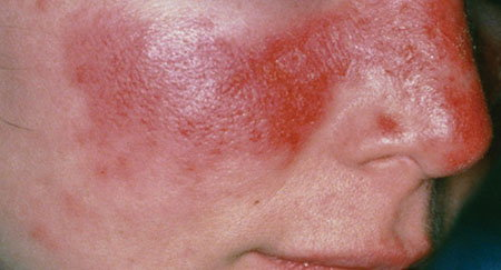Acute cutaneous lupus erythematosus