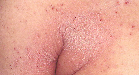 Crusted scabies (Norwegian scabies)