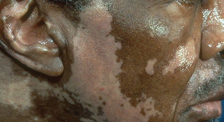 Vitiligo on the face