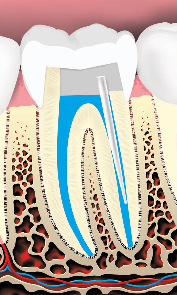 Root canal 6