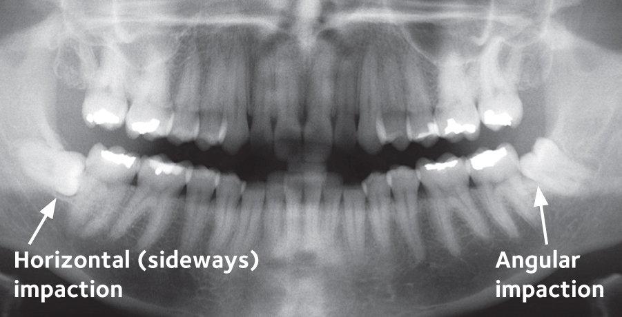 Wisdom Teeth Roanoke Va Dentist