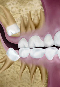 Mesial impactions
