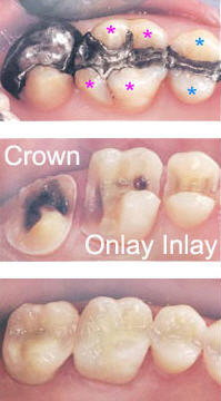 Posterior crown onlay/inlay