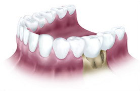 This tooth is unrestorable due to the large amount of bone loss that is missing on the front side of the tooth