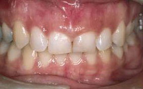Periodontal Before