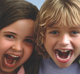 MagicFil Tooth Colored Fillings for Kids