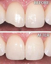 Tooth Bonding in Manassas, VA