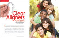 Clear Aligners for Teens - Dear Doctor Magazine