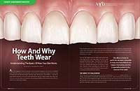 Tooth Wear - Dear Doctor Magazine