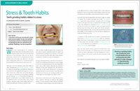 Smile Design Miami FL
