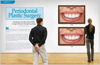 Periodontal Plastic Surgery - Dear Doctor Magazine