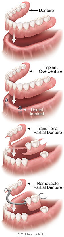 Removable denture types.