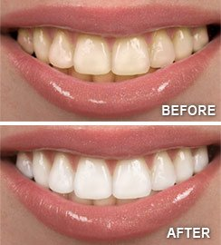 Teeth Whitening Before and After | Heather Feray Bohan, DDS, PA in Tomball, TX