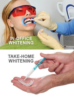 Teeth Whitening Options.