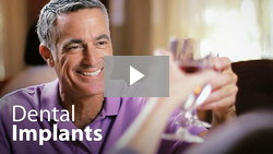 Dental implant video