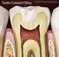 Tooth-Colored Filling.