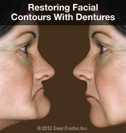 differences in facial structure before and after dentures