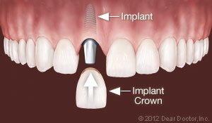 Dental Implants Replace One Tooth Ahmad Soolari DMD - Silver Spring MD Dentist