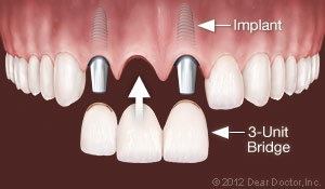 Dental Implants Replace Multiple Teeth Warteloo Ontario