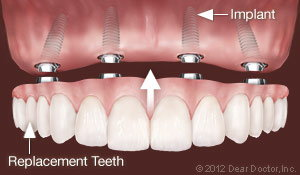 Dental Implants Replace All Teeth Waterloo Ontario