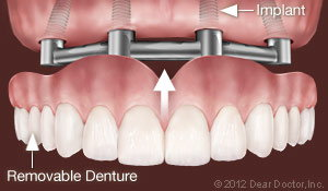 Dental Implants Support Removable Dentures Ahmad Soolari DMD - Silver Spring MD Dentist