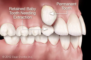 Retained Baby Tooth Needing Extraction | Medicine, AB Dentist