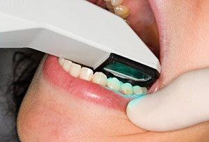Itero Scanning Teeth.