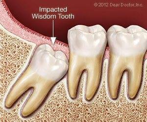 Tooth Extractions Newburgh NY | Dentist