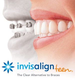 Invisalign for teens.