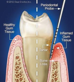 Periodontal Disease Ahmad Soolari DMD- Silver Spring MD Dentist