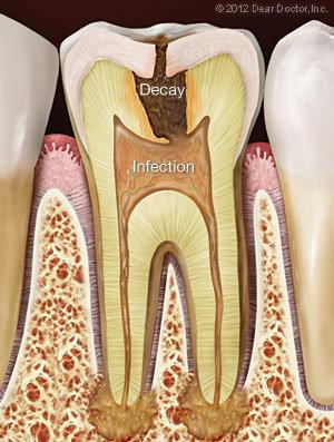 Oral Facial Pain Long Beach CA - Dentist