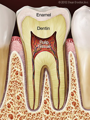 Root Canals in Portland, OR